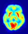 """fifth amendment brain scan"" PET_scan_of_human_brain.png"